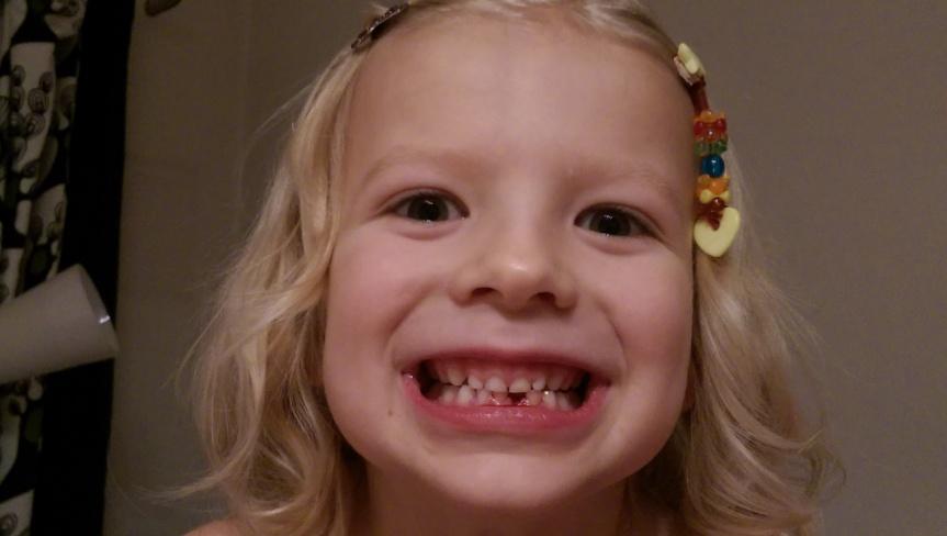 En tand fattigare, och så HIMLA glad. Den som tittar noga ser rester på underläppen efter operationen